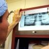 Photo Op: Types of Dental X-Rays Thumbnail